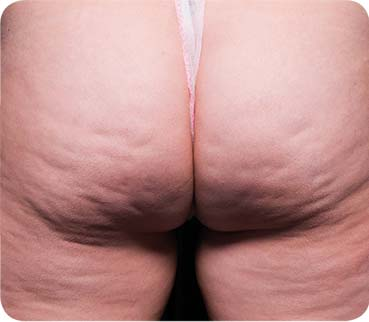 Mittlere Cellulite