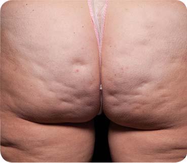 Schwere Cellulite