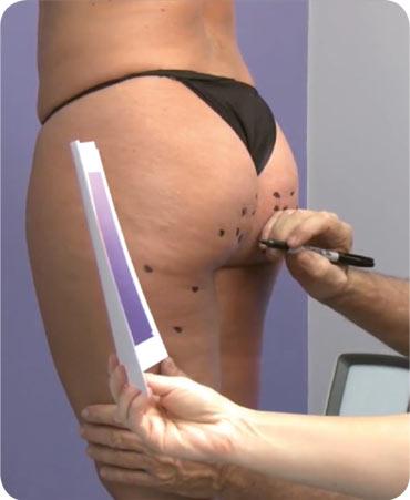 Cellulite Vorbehandlung