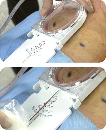 So funktioniert Cellfina® - Cellulite entfernen lassen